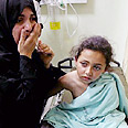Girl wounded in botched air strike Photo: AP