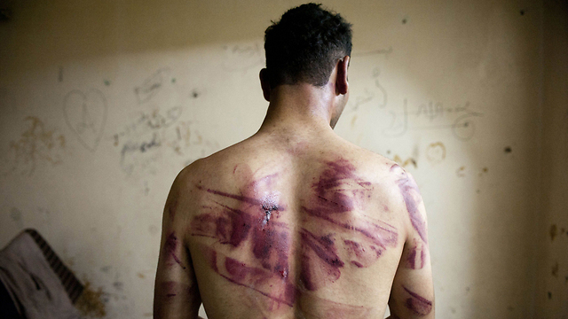 A former Syrian detainee displays marks left by torture. (Photo: AFP/Archive)