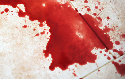 בעל המסעדה הואשם בגרימת פציעה. אילוסטרציה (צילום: shutterstock)
