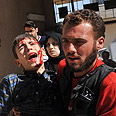 Injured Syrians after attack (archives) Photo: AFP
