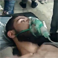 Gas attack victim in Homs