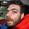Injured Palestinian