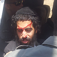 Haredi injured in clashes Photo: Noam (Dabul) Dvir