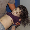 Young victim of gas attack Photo: Reuters