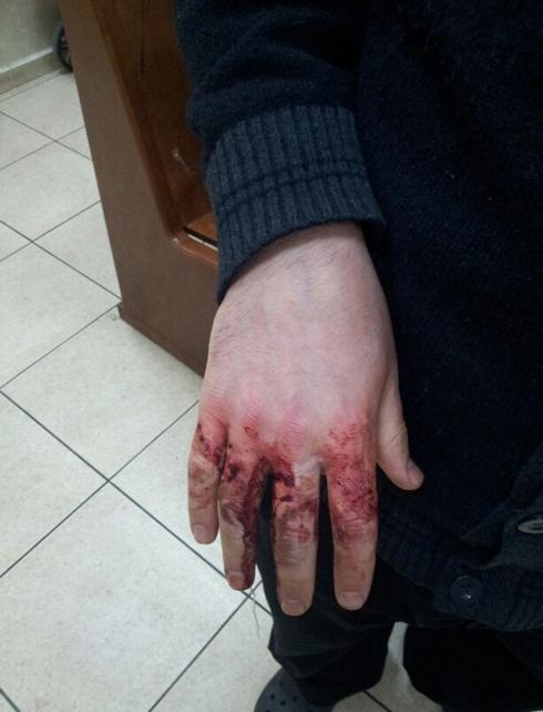 יהודי הותקף ב אוקראינה אנטישמיות