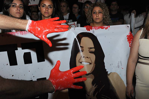 Blood on hands (Photo: Efi Sharir, Yedioth Aharonoth)