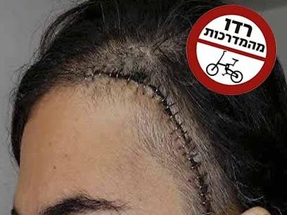 """""""כלל לא שמעתי אותו מתקרב"""". הדס אחרי הפגיעה (צילום: באדיבות  קבוצת  הפייסבוק: """"רוכבי אופניים מפסיקים לדרוס הולכי רגל על המדרכה"""" )"""