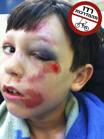 """""""ככל הנראה ניצלנו בנס מפגיעה בלתי הפיכה"""". דניאל לביד אחרי פגיעת רוכב (צילום: באדיבות המשפחה)"""