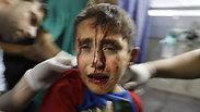 An injured Palestinian boy in Gaza Photo: AFP