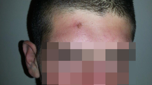 Picture of soldier after alleged beating