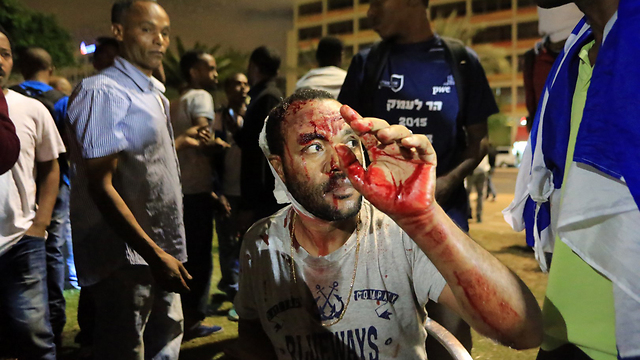 A wounded protester in Rabin Square (Photo: Yaron Brenner)