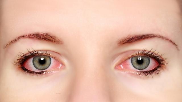 עיניים אדומות יכולות להעיד על דלקת  (צילום: shurretstock)