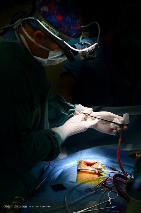 """ד""""ר אמיר, מכין את הצנרת של מכונת לב ראות לפני חיבורה ללב החולה  (צילום: שמעון אדרי)"""