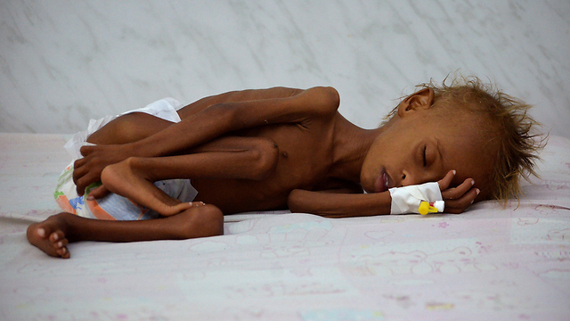 A malnurished infant in Yemen (Photo: Reuters)