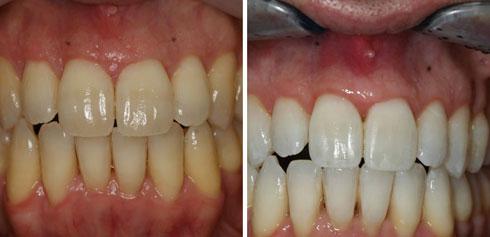 הלבנת שיניים מהירה (צילום: באדיבות מרפאת יודנטל ד״ר אילן פרייס)