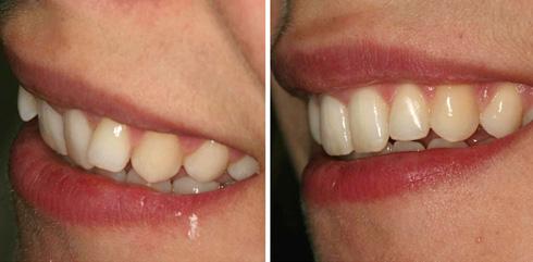 מיישר אינמן. בעיקר לבעיות בשיניים קדמיות (צילום: באדיבות מרפאת יודנטל ד״ר אילן פרייס)