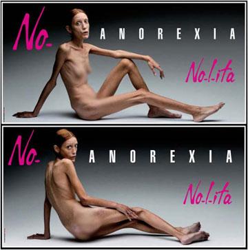 קמפיין נגד אנורקסיה בכיכובה של הדוגמנית איזבלה קארו, שנפטרה מאוחר יותר מהמחלה