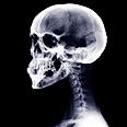 תצלום רנטגן של גולגולת וצוואר אדם