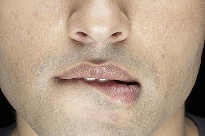 המחלה פוגעת באיכות החיים ובתחושת הביטחון (צילום: jupiter) (צילום: jupiter)