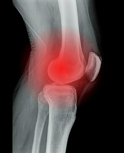 כאב כרוני נגרם מכך שמערכת העצבים רגישה מדי (צילום: shutterstock) (צילום: shutterstock)