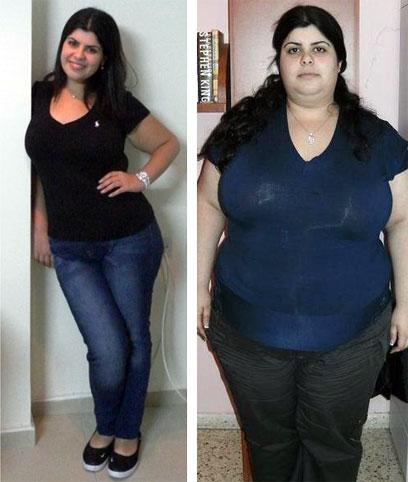 """ירדה מ-140 ק""""ג בזכות רופאה. מימין: טלי לפני הניתוח. משמאל: אחרי (צילום: הרנן גומלסקי) (צילום: הרנן גומלסקי)"""