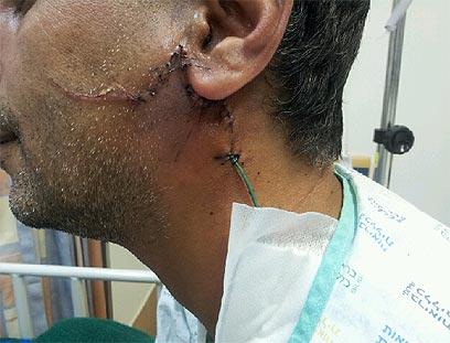 """עו""""ד סלימאן אל-זיאדנה והמזכרת מהתקיפה (צילום: אילנה קוריאל) (צילום: אילנה קוריאל)"""