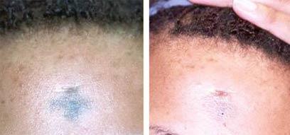 """העור יכול להגיב בדלקת ובגלד (צילום: באדיבות מרפאת ד""""ר אלמן) (צילום: באדיבות מרפאת ד"""