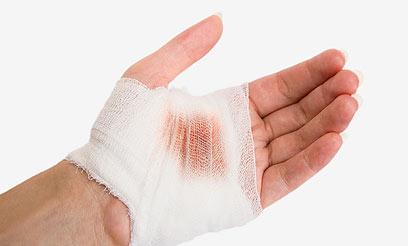 כאשר ישנה פציעה, נעות טסיות הדם לעבר האתר שניזוק (צילום: shutterstock  ) (צילום: shutterstock  )