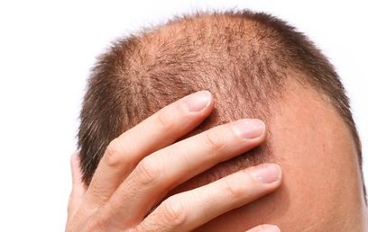 הזקיקים מקבלים את החומרים לייצור שיער דרך מחזור הדם (צילום: Shutterstock) (צילום: Shutterstock)