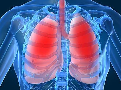הטיפול החדש מגדיל את אחוז ניצול הריאות, מה שמשפר את איכות חייהם של החולים (צילום: shutterstock) (צילום: shutterstock)