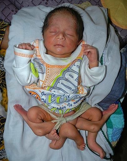 זה לא תינוק אחד. הם שניים ואחד נולד טרם זמנו. התינוק עם 6 רגליים מפקיסטן (צילום: רויטרס) (צילום: רויטרס)