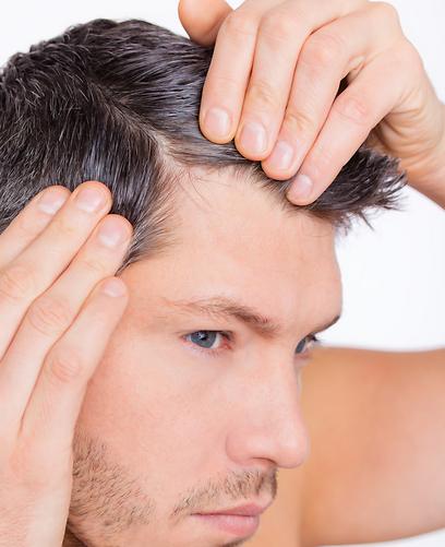 אצל גברים התהליך יכול להתחיל כבר בגילאי 20 ומעלה (צילום: shutterstock) (צילום: shutterstock)