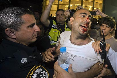 המחאה למען כולם אבל יש עוד כאלה שמתלבטים (צילום: AFP) (צילום: AFP)