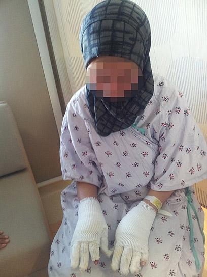 נבדק קשר בין המקרים. אחת הפלסטינים שנפגעו מבקבוק התבערה (צילום: חסן שעלאן) (צילום: חסן שעלאן)