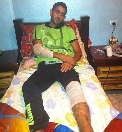 נסים אבו-רמוז לאחר התקיפה  ()