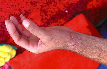 נפצע גם בידיו ()