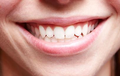 צריכת אומגה 3 מיטיבה עם מצב החניכייים והשיניים (צילום: shutterstock) (צילום: shutterstock)