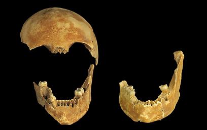 שרידי גולגולת שנמצאה בבאר העתיקה (צילום: קלרה עמית, רשות העתיקות) (צילום: קלרה עמית, רשות העתיקות)