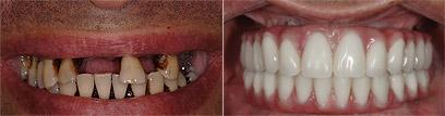 """אחרי השתלת שיניים (אחרי ) ולפניה. טיפול באותו יום (צילום: ד""""ר רונן בורודובסקי)"""