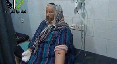 תמונות שפרסמו המורדים כראיה לשימוש בנשק כימי נגד אזרחים ()