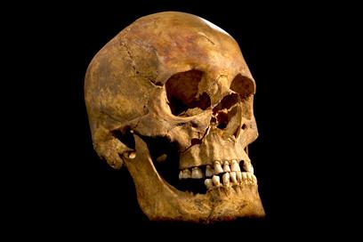 הגולגולת שהציגו הארכיאולוגים. נפגעה מחפץ בעל להב (צילום: AP) (צילום: AP)