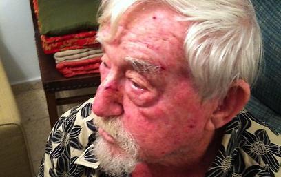 """""""לא הצלחתי להכות בחזרה"""". פייבל, אחרי ששוחרר מבית החולים (צילום: נילי לרנר) (צילום: נילי לרנר)"""