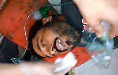 נפגע נשק כימי לכאורה בסוריה ()