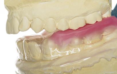 סד הלילה הקשיח מונע את סגירת הפה ושחיקת השיניים (צילום: shutterstock) (צילום: shutterstock)