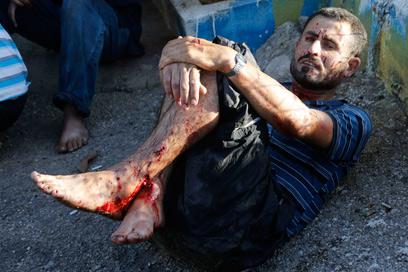 המלחמה בסוריה זלגה גם לצד הלבנוני. פצוע מפגיעת רקטה בדרום לבנון (צילום: רויטרס)