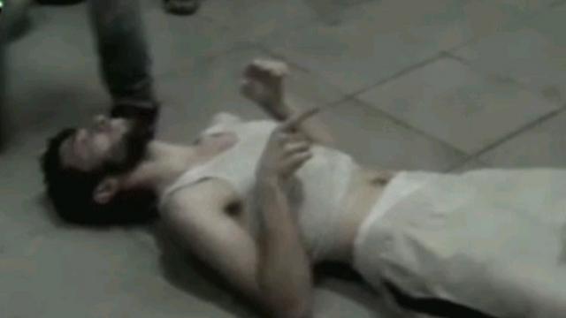 גבר שנפגע בתקיפה הכימית (צילום: CNN) (צילום: CNN)
