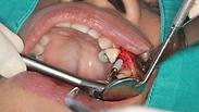 הביקור אצל רופא השיניים הסתיים במוות, האלמנה תובעת מיליונים