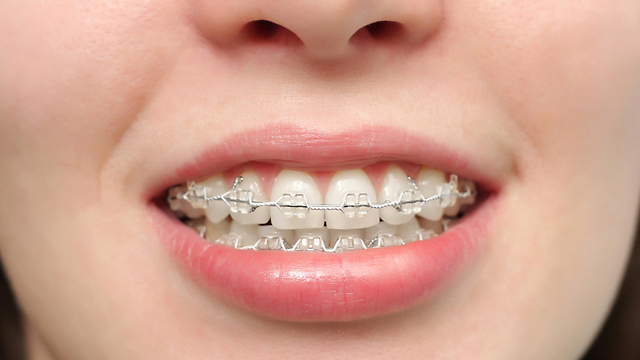 בית חם לחיידקים. גשר ליישור שיניים (צילום: shutterstock  ) (צילום: shutterstock  )