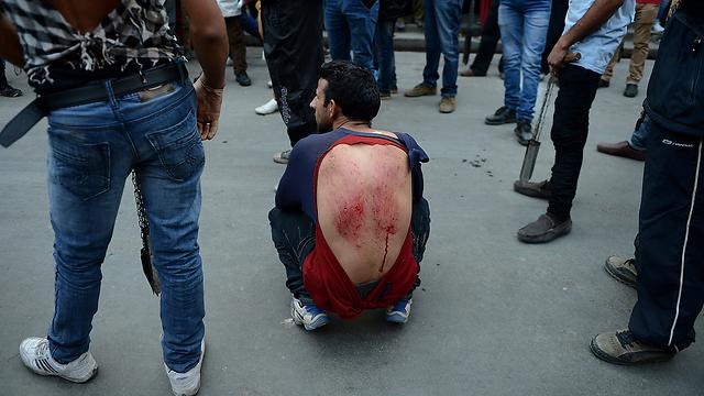 חבורות ופצעים על גבו של הודי בקשמיר (צילום: AFP) (צילום: AFP)