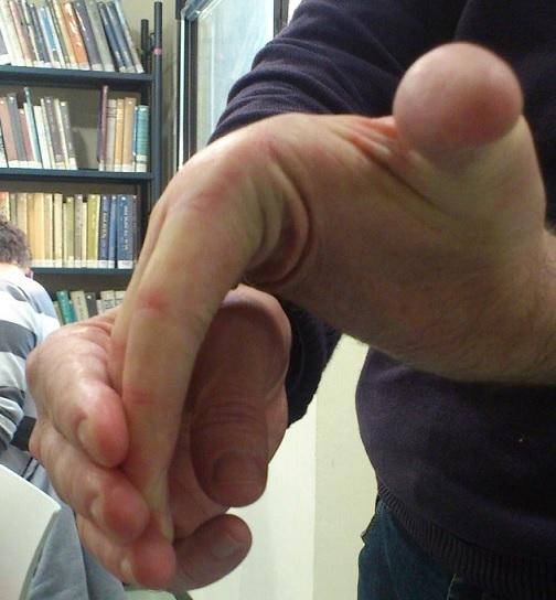 תמונה 1: יד גמישה. אדם מתאקלם מהר ולא אוהב שיגרה ()
